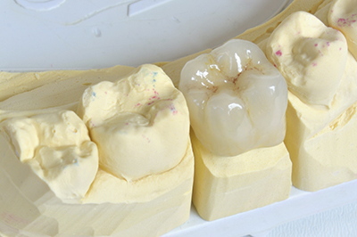 Photograph of a dental crown from Michael Regan, DMD Family, Cosmetic & Implant Dentistry in Milwaukie, OR