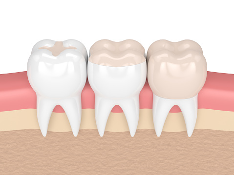 Rendered image of dental fillings from Michael Regan, DMD Family, Cosmetic & Implant Dentistry in Milwaukie, OR