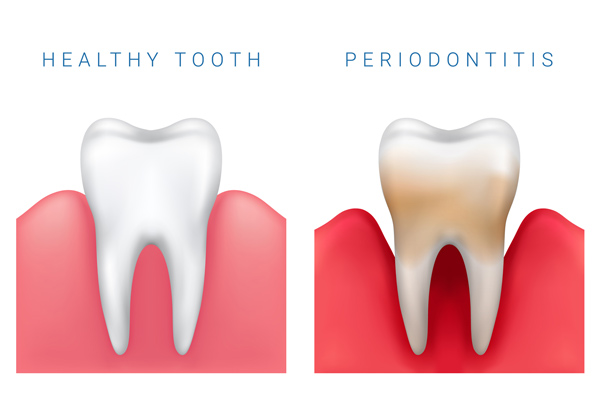 Comparison of healthy tooth and periodontis at Michael Regan, DMD Family, Cosmetic & Implant Dentistry in Milwaukie, OR